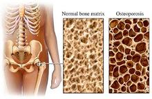Η οστεοπόρωση σε 10 ερωτήσεις